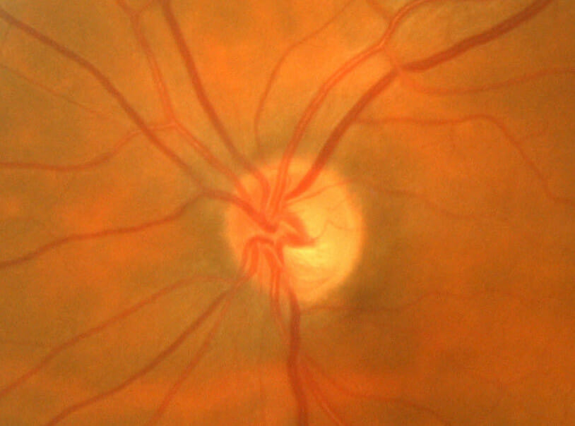glaucoma optic nerve