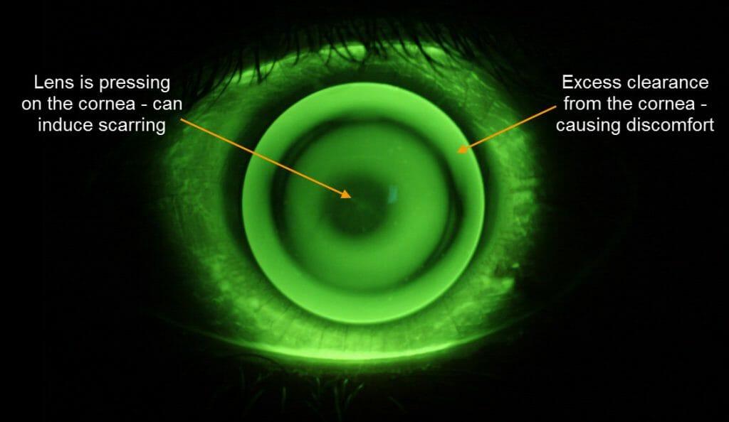 keratoconus contact lenses