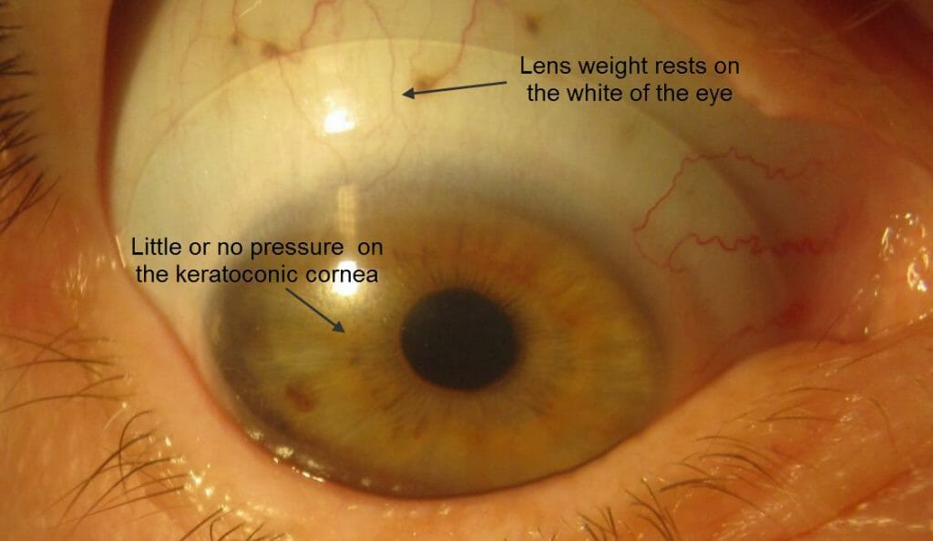 keratoconus contact lens